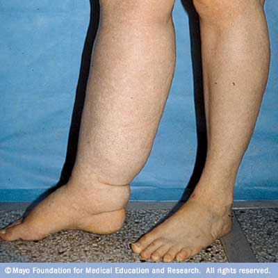 lymphedema in the right leg